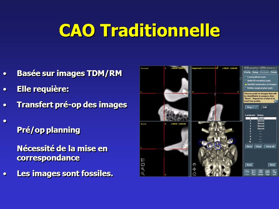 CAO Traditionnelle Basée sur images TDM/RM Elle requière: Transfert pré-op des images Pré/op planning Nécessité de la mise en correspondance Les images sont fossiles.