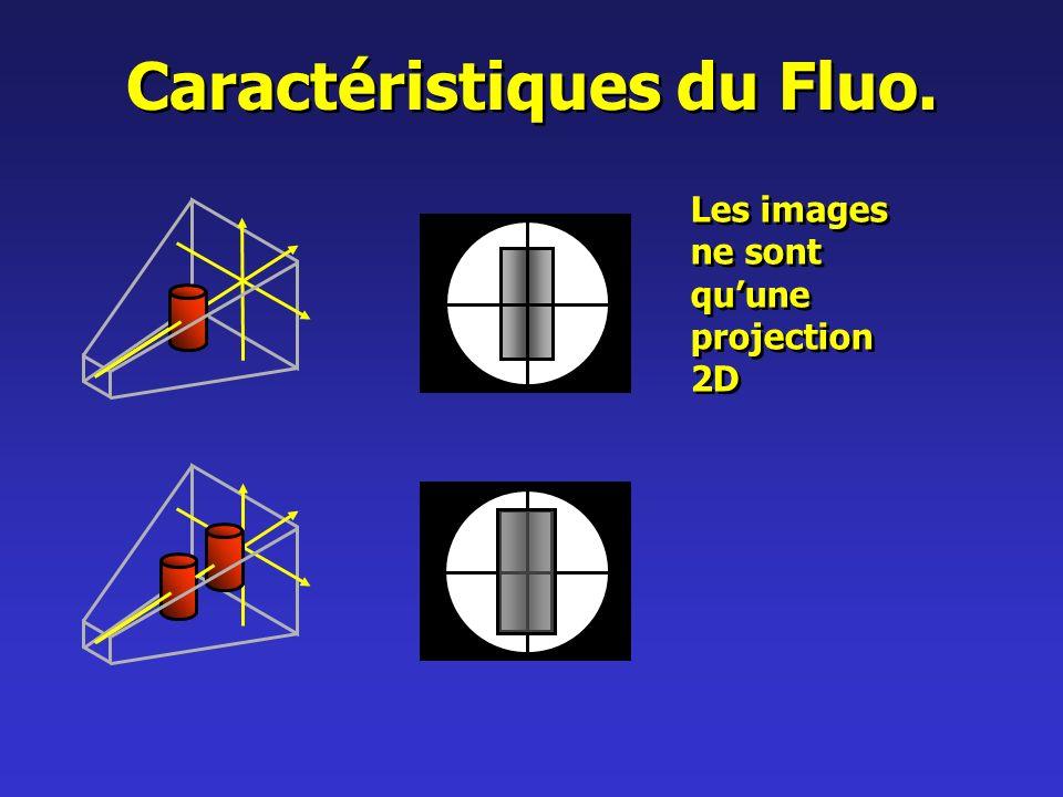Caractéristiques du Fluo. Les images ne sont quune projection 2D