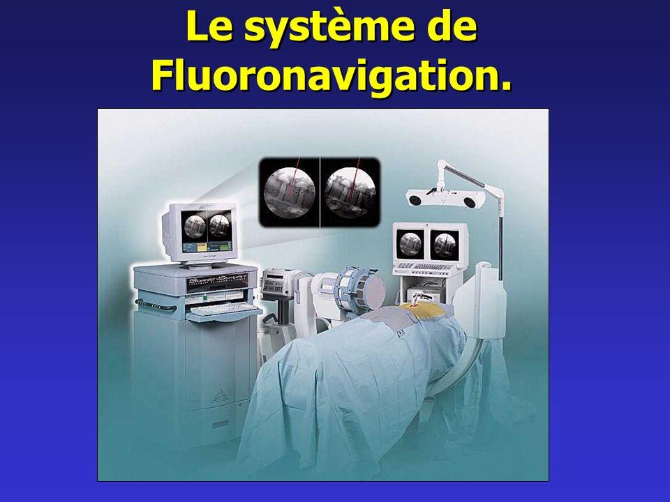 Le système de Fluoronavigation.