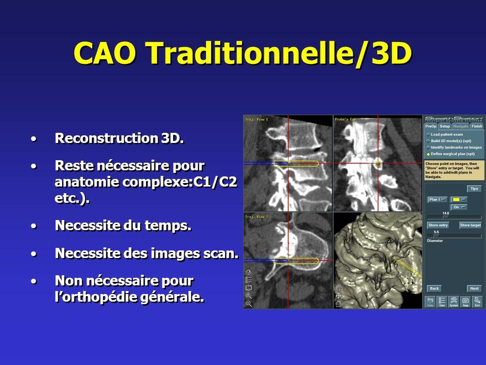 CAO Traditionnelle/3D Reconstruction 3D.Reste nécessaire pour anatomie complexe:C1/C2 etc.).