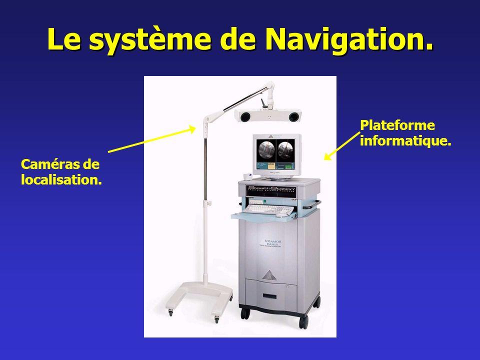 Le système de Navigation. Caméras de localisation. Plateforme informatique.