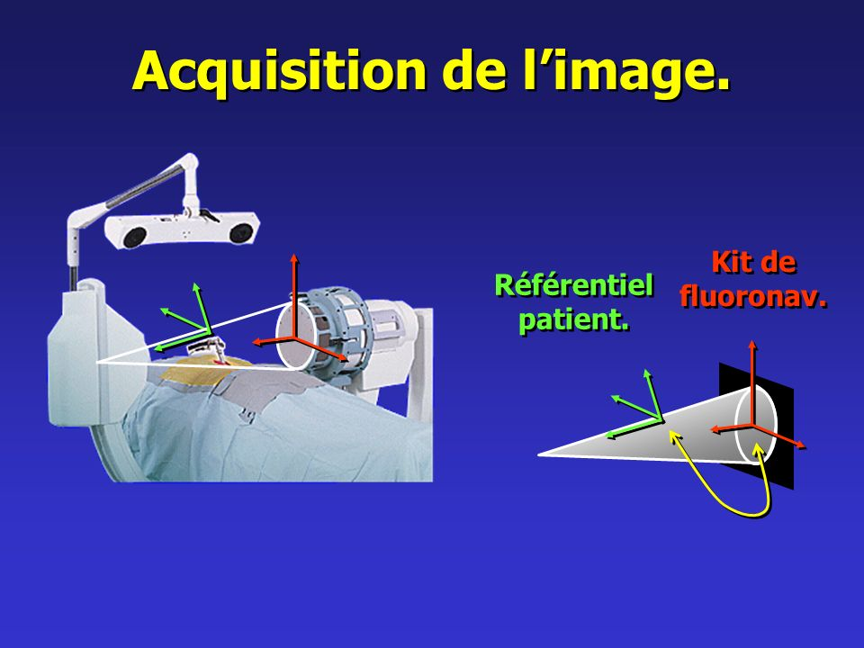 Acquisition de limage. Référentiel patient. Référentiel patient. Kit de fluoronav.