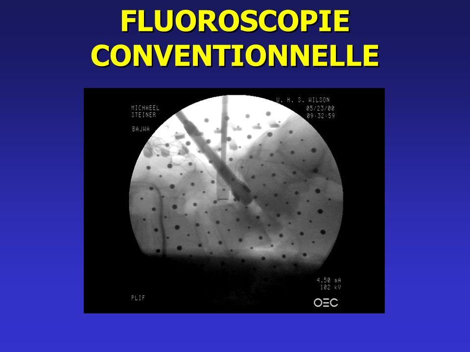 Caractéristiques du Fluo. Les structures du fluoroscope ne sont pas rigides.