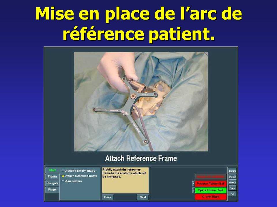 Mise en place de larc de référence patient.