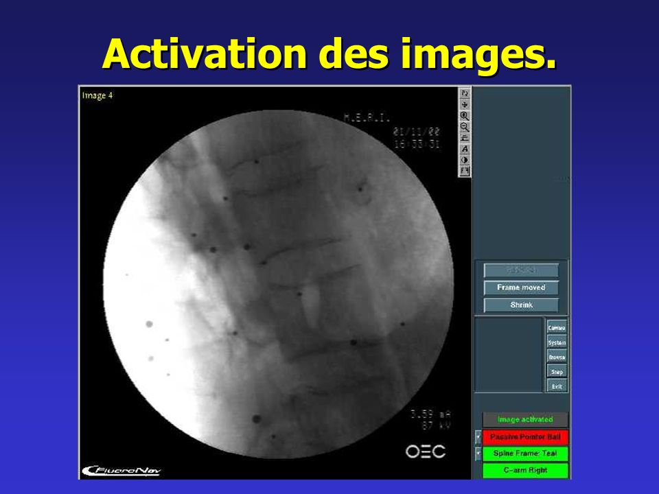 Activation des images.