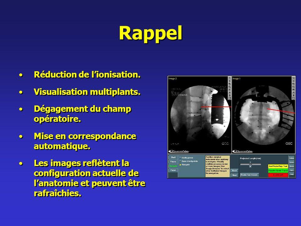 Rappel Réduction de lionisation.Visualisation multiplants.