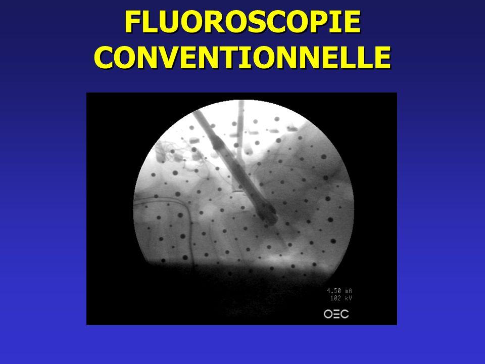 Ffluoroscopie conventionnelle