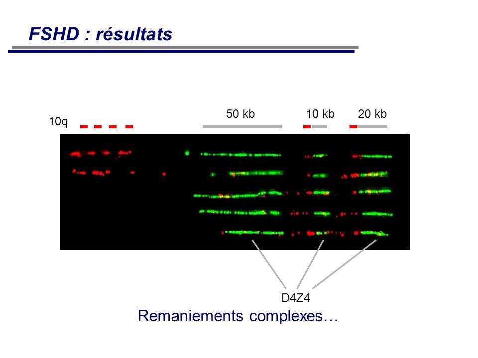 10q 50 kb10 kb20 kb D4Z4 Remaniements complexes… FSHD : résultats