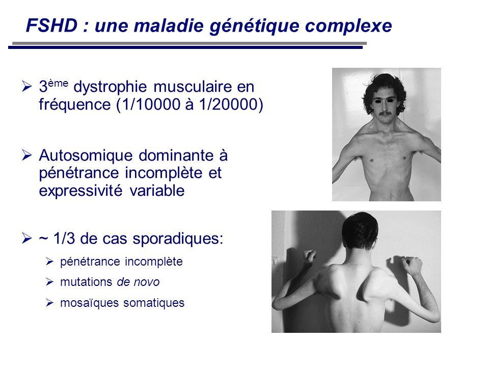FSHD : une maladie génétique complexe 3 ème dystrophie musculaire en fréquence (1/10000 à 1/20000) Autosomique dominante à pénétrance incomplète et ex