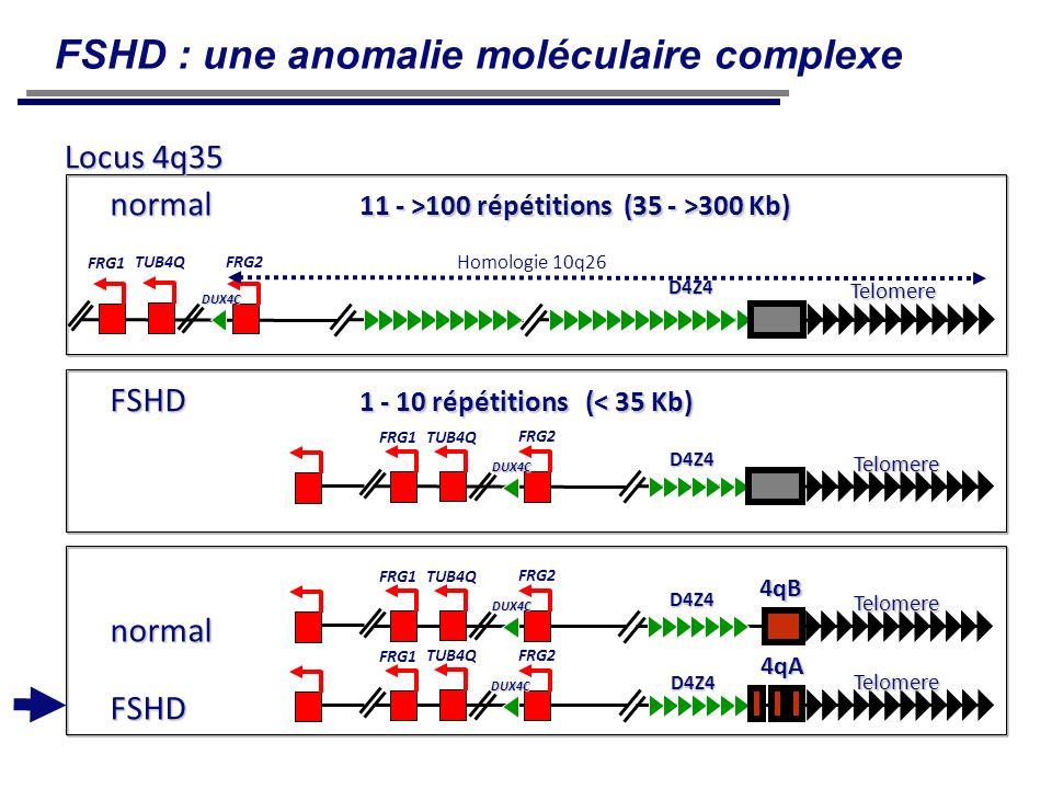 FSHD 1 - 10 répétitions (< 35 Kb) Telomere FRG2 TUB4Q FRG1 D4Z4 DUX4C Telomere Telomere 4qB 4qA normal FSHD FRG2 TUB4Q FRG1 FRG2 TUB4Q FRG1 D4Z4 D4Z4