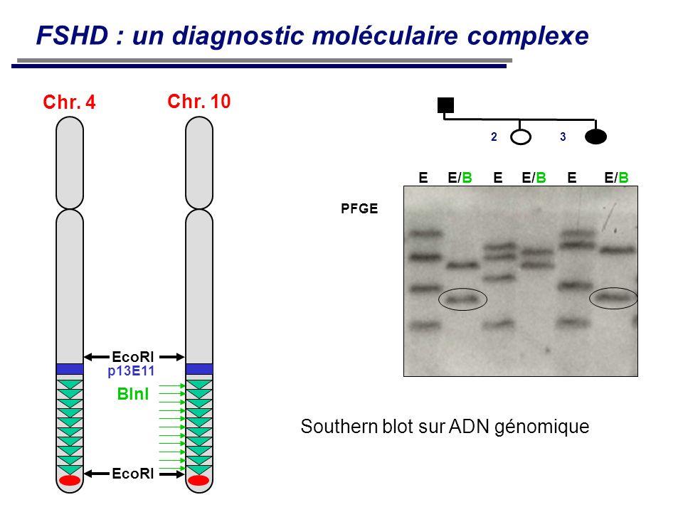 FSHD : un diagnostic moléculaire complexe Chr. 4 p13E11 EcoRI BlnI Chr. 10 EE/B EE PFGE 23 Southern blot sur ADN génomique