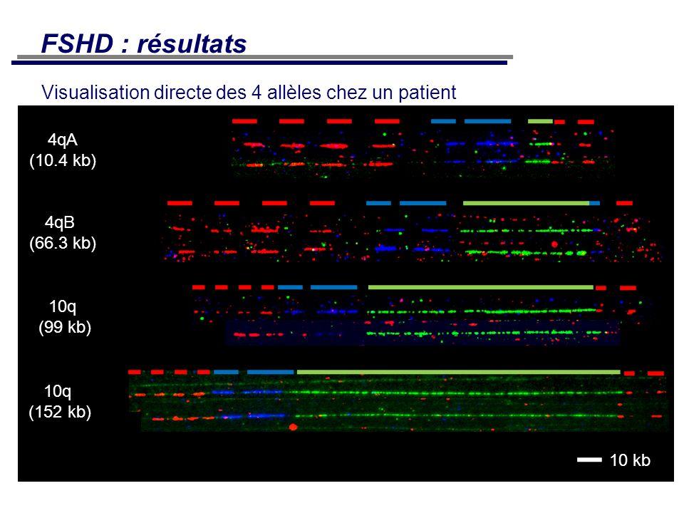 Visualisation directe des 4 allèles chez un patient FSHD : résultats 4qA (10.4 kb) 4qB (66.3 kb) 10q (99 kb) 10q (152 kb) 10 kb