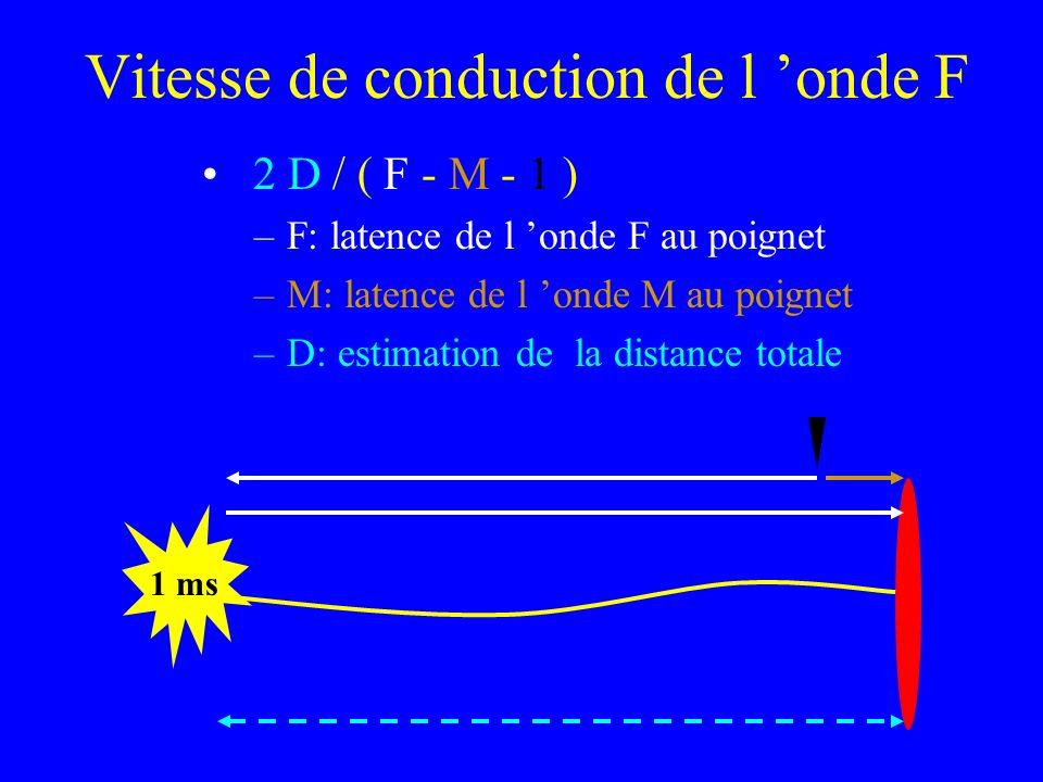 Vitesse de conduction de l onde F 2 D / ( F - M - 1 ) –F: latence de l onde F au poignet –M: latence de l onde M au poignet –D: estimation de la dista