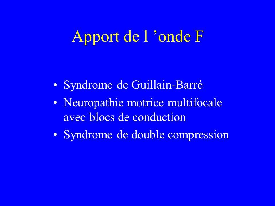 Apport de l onde F Syndrome de Guillain-Barré Neuropathie motrice multifocale avec blocs de conduction Syndrome de double compression