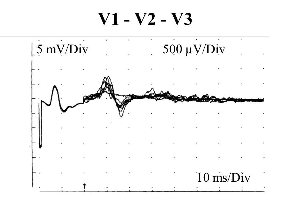 V1 - V2 - V3 10 ms/Div 5 mV/Div500 µV/Div