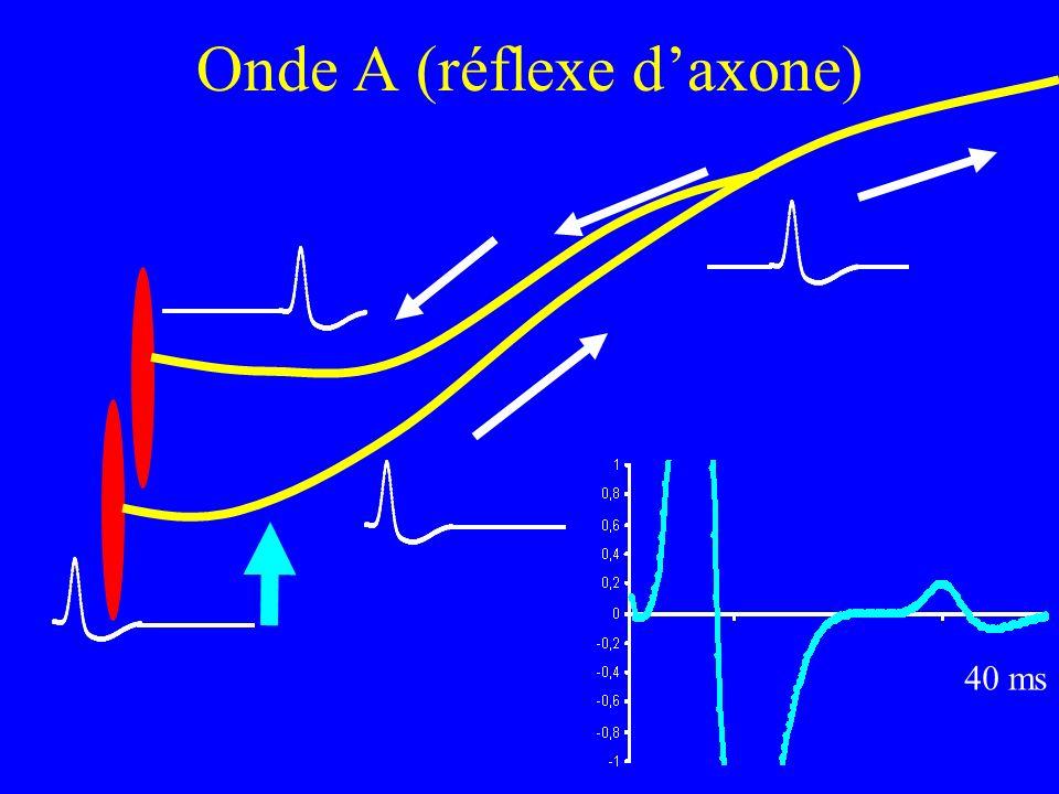 Onde A (réflexe daxone) 40 ms