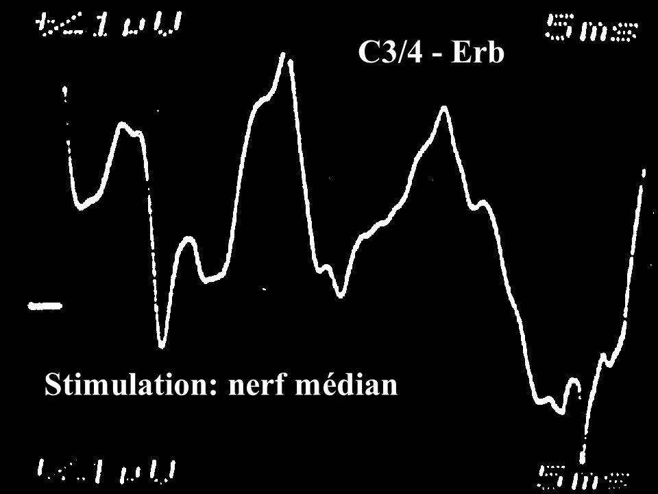 Stimulation: nerf médian C3/4 - Erb