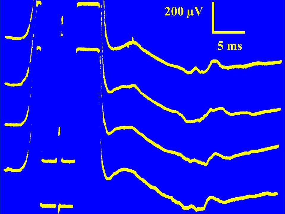 Le réflexe H facilité 5 ms/Div 5 mV/Div500 µV/Div