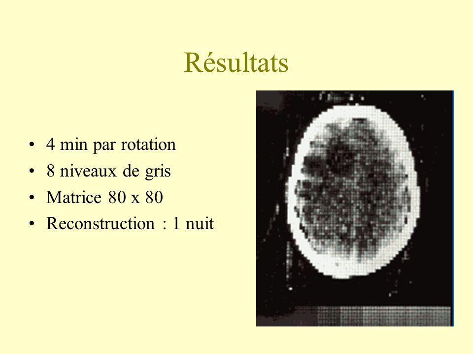 Résultats 4 min par rotation 8 niveaux de gris Matrice 80 x 80 Reconstruction : 1 nuit