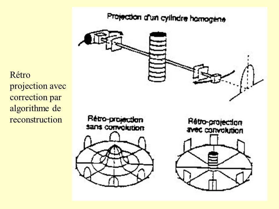 Rétro projection avec correction par algorithme de reconstruction