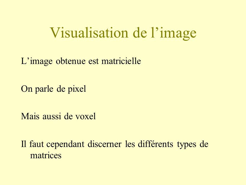 Visualisation de limage Limage obtenue est matricielle On parle de pixel Mais aussi de voxel Il faut cependant discerner les différents types de matrices