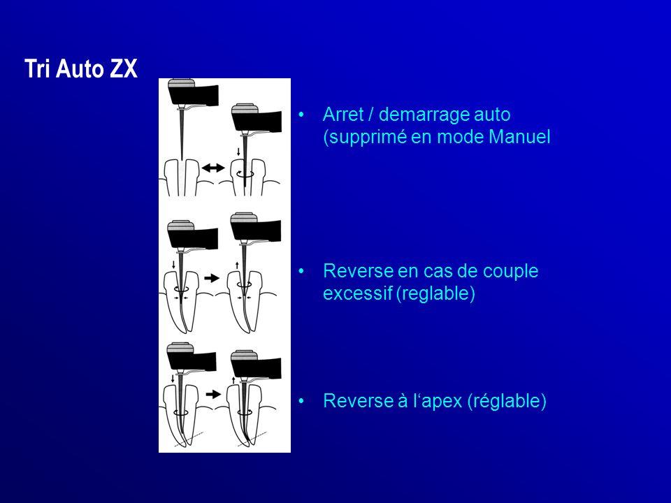 Arret / demarrage auto (supprimé en mode Manuel Reverse en cas de couple excessif (reglable) Reverse à lapex (réglable) Tri Auto ZX