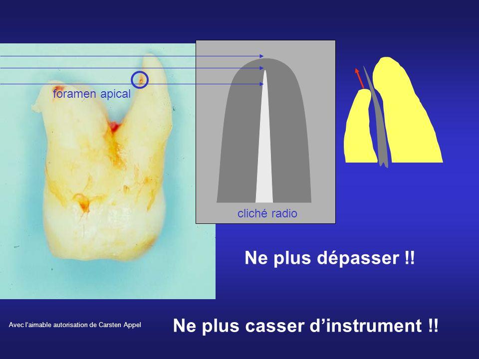 cliché radio foramen apical Avec laimable autorisation de Carsten Appel Ne plus dépasser !! Ne plus casser dinstrument !!