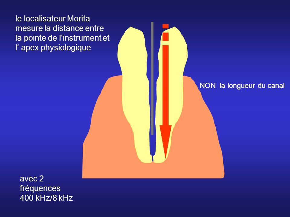 le localisateur Morita mesure la distance entre la pointe de linstrument et l apex physiologique NON la longueur du canal avec 2 fréquences 400 kHz/8 kHz