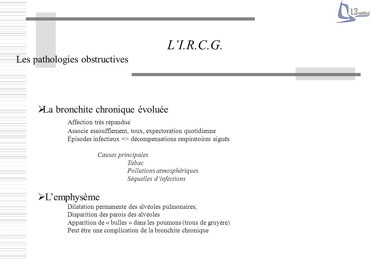 Les pathologies obstructives LI.R.C.G. La bronchite chronique évoluée Affection très répandue Associe essoufflement, toux, expectoration quotidienne É