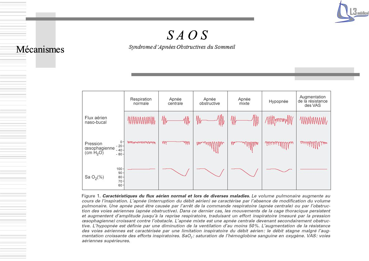 Mécanismes S A O S Syndrome dApnées Obstructives du Sommeil Mécanismes S A O S Syndrome dApnées Obstructives du Sommeil