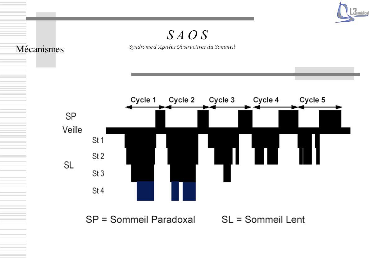 Mécanismes S A O S Syndrome dApnées Obstructives du Sommeil
