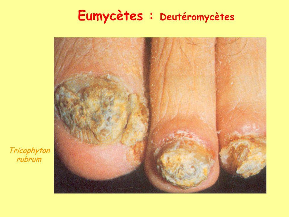 Eumycètes : Deutéromycètes Tricophyton rubrum