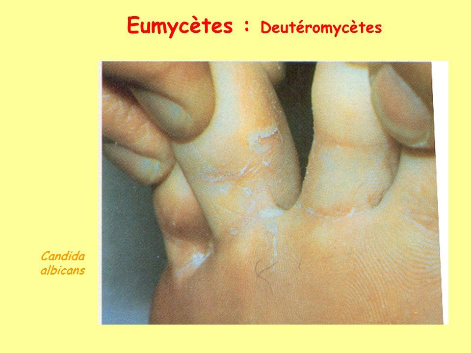 Eumycètes : Ascomycètes Truffe (Tuber melanosporum) Morille (Morchella esculenta) Ergot (Claviceps sp)