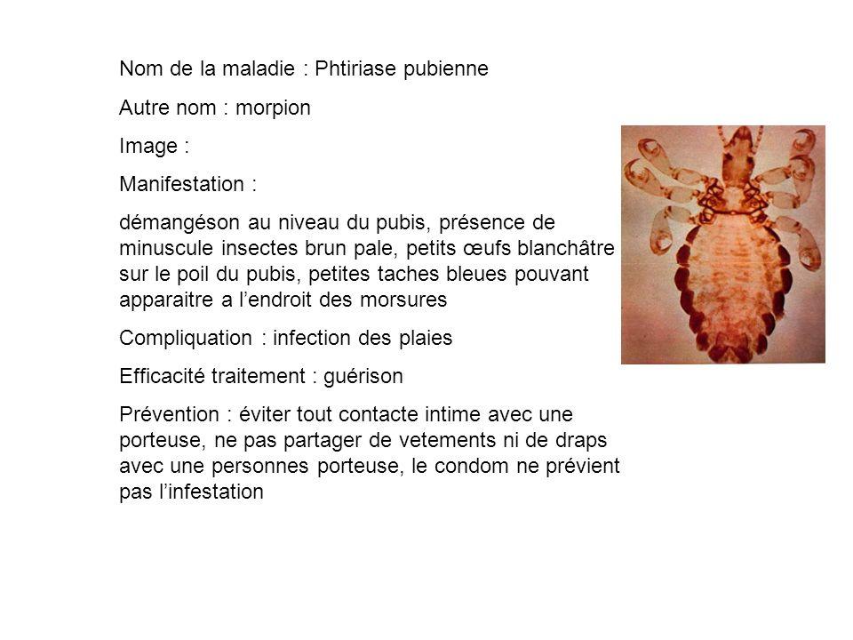 Nom de la maladie : Phtiriase pubienne Autre nom : morpion Image : Manifestation : démangéson au niveau du pubis, présence de minuscule insectes brun