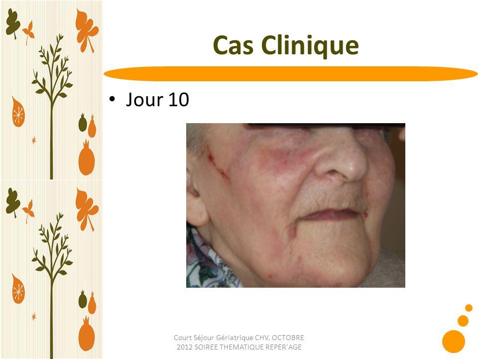 Court Séjour Gériatrique CHV, OCTOBRE 2012 SOIREE THEMATIQUE REPER'AGE Cas Clinique Jour 10