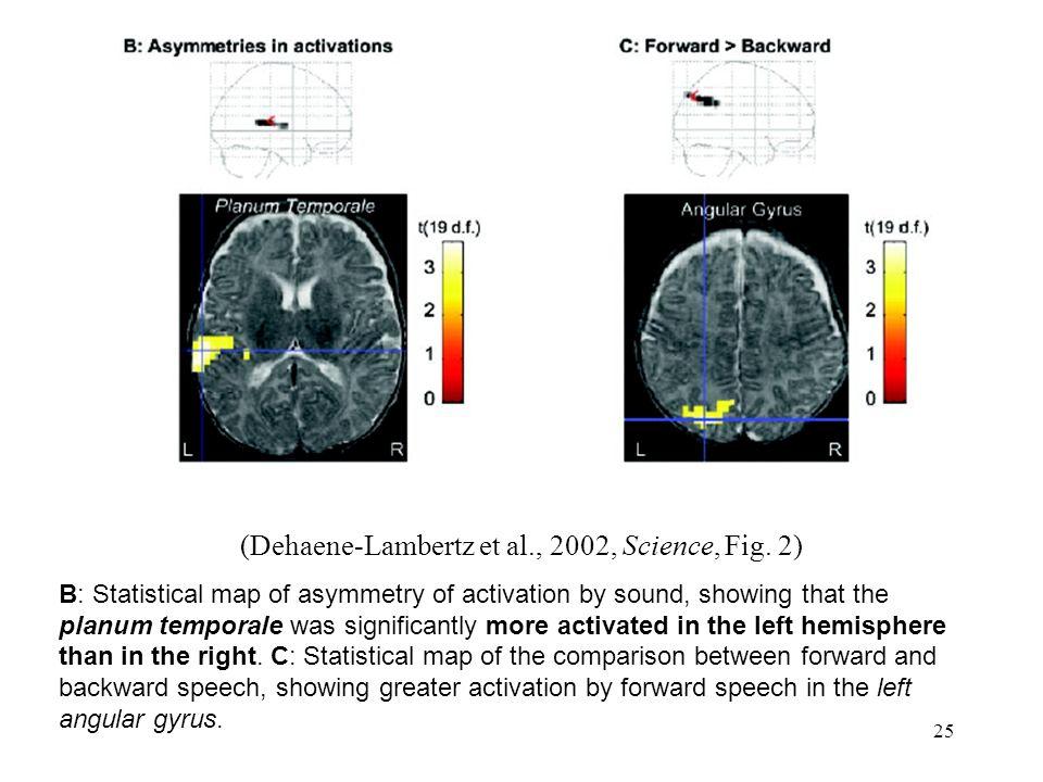 24 (Bertoncini et al., 1989, Brain & Language) Les nouveaux-nés réagissent différemment à la musique et au langage Réaction au changement => parole traitée dans HG, musique dans HD par nouveaux-nés ?