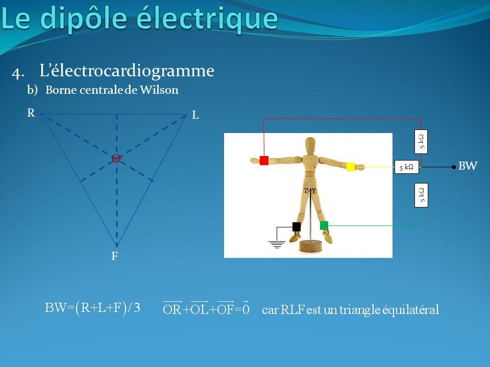 4. Lélectrocardiogramme b)Borne centrale de Wilson 5 k BW F R L O