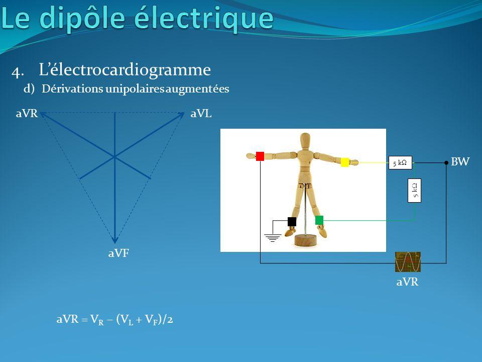 4. Lélectrocardiogramme aVF aVRaVL 5 k BW aVR d)Dérivations unipolaires augmentées aVR = V R – (V L + V F )/2