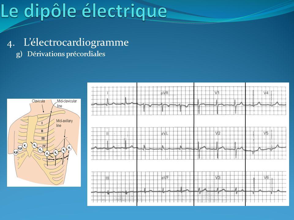 4. Lélectrocardiogramme g)Dérivations précordiales
