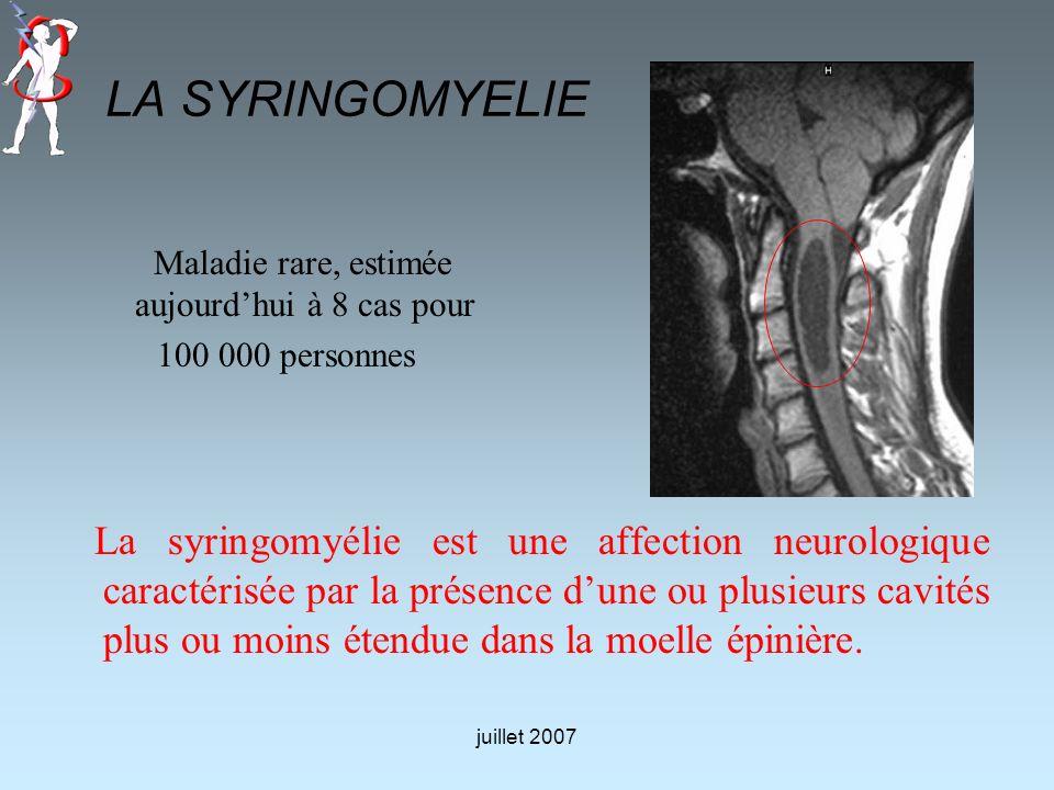 LA SYRINGOMYELIE Maladie rare, estimée aujourdhui à 8 cas pour 100 000 personnes La syringomyélie est une affection neurologique caractérisée par la p