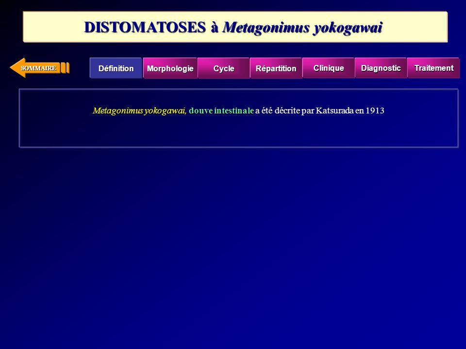 SOMMAIRE Metagonimus yokogawai,douve intestinale Metagonimus yokogawai, douve intestinale a été décrite par Katsurada en 1913 DISTOMATOSES à Metagonim