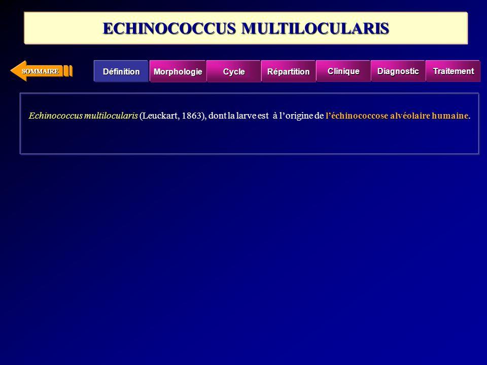 SOMMAIRE Echinococcus multilocularisléchinococcose alvéolaire humaine Echinococcus multilocularis (Leuckart, 1863), dont la larve est à lorigine de lé