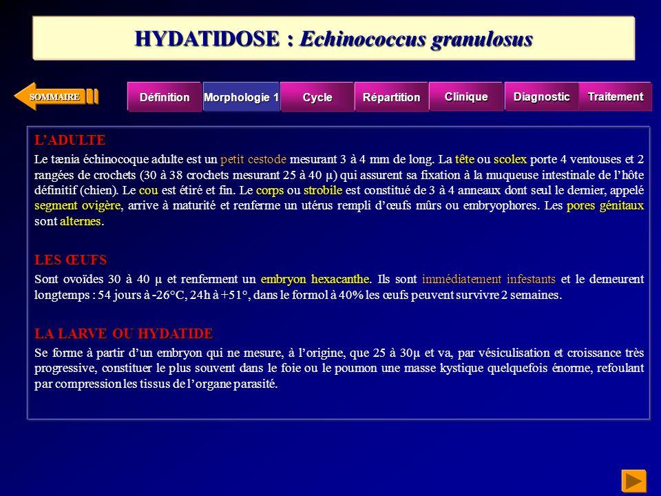SOMMAIRE bilharziose vésicale chroniquecystite bilharzienne chronique La bilharziose vésicale chronique ou « cystite bilharzienne chronique », correspond à linstallation du tissu fibroscléreux.