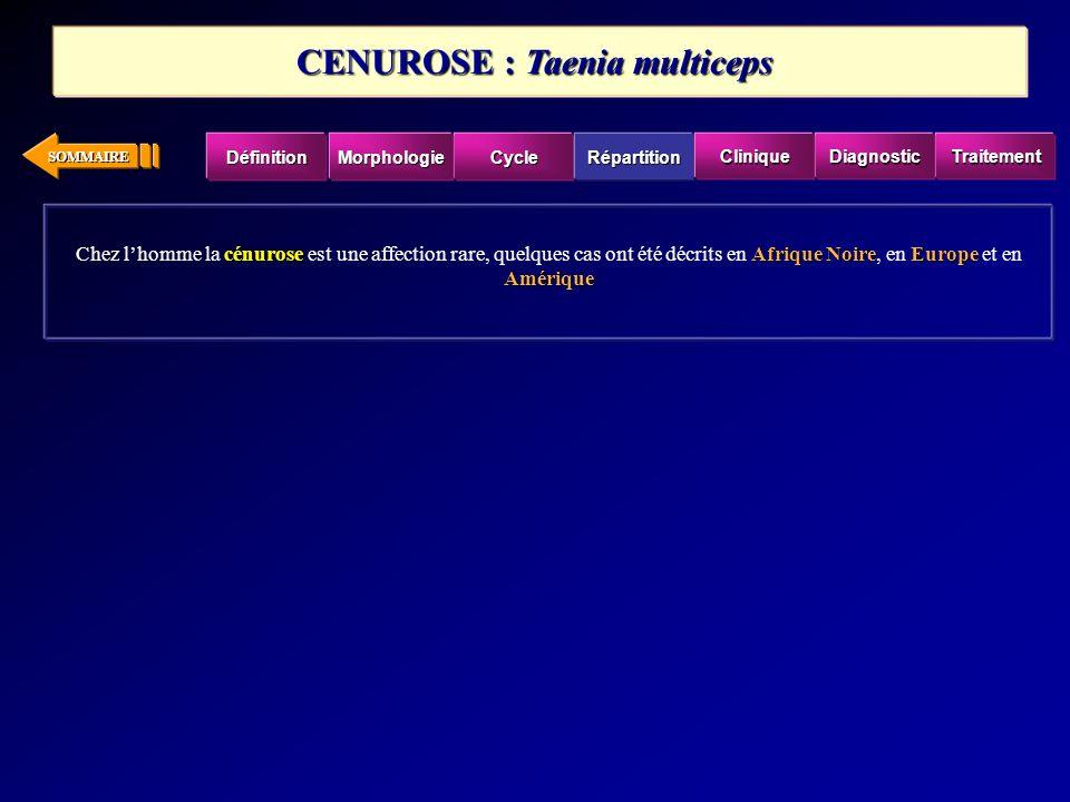 SOMMAIRE cénuroseAfrique NoireEurope Amérique Chez lhomme la cénurose est une affection rare, quelques cas ont été décrits en Afrique Noire, en Europe