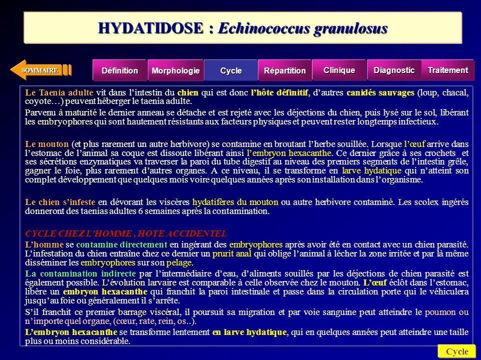 SOMMAIRE CEST UNE AFFECTION COSMOPOLITE AVEC DES ZONES PLUS TOUCHÉES « LHYDATIDOSE SUIT LE MOUTON COMME SON OMBRE ».
