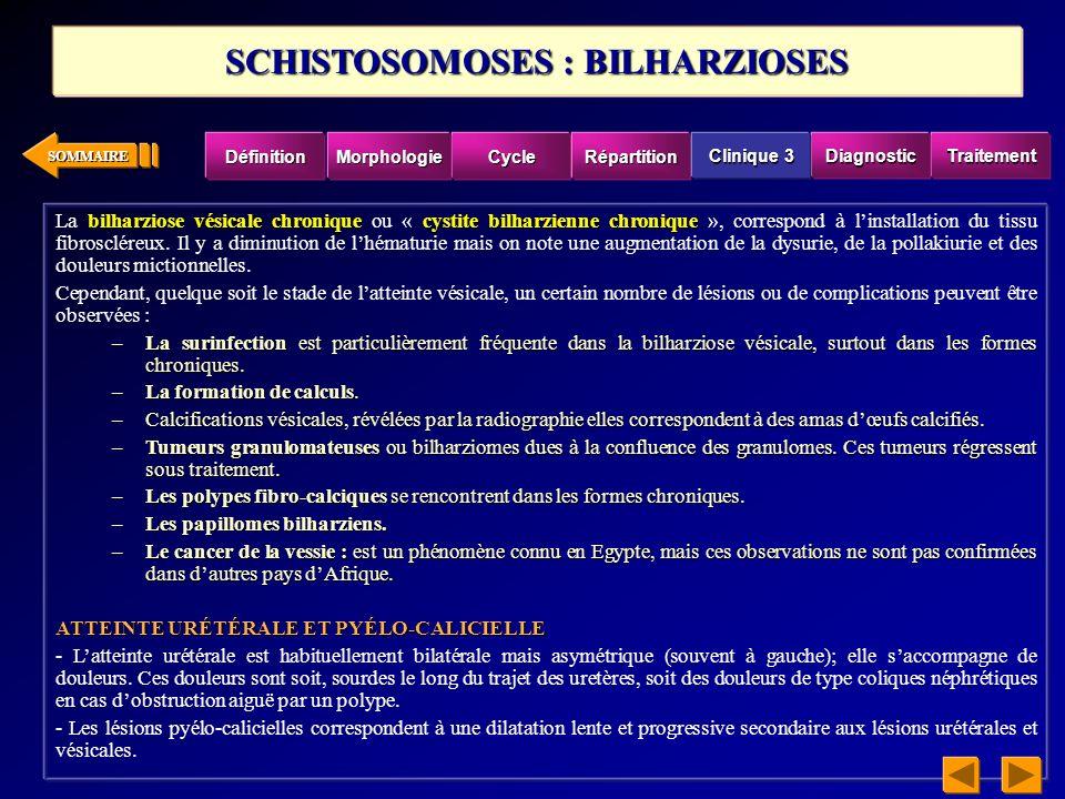 SOMMAIRE bilharziose vésicale chroniquecystite bilharzienne chronique La bilharziose vésicale chronique ou « cystite bilharzienne chronique », corresp