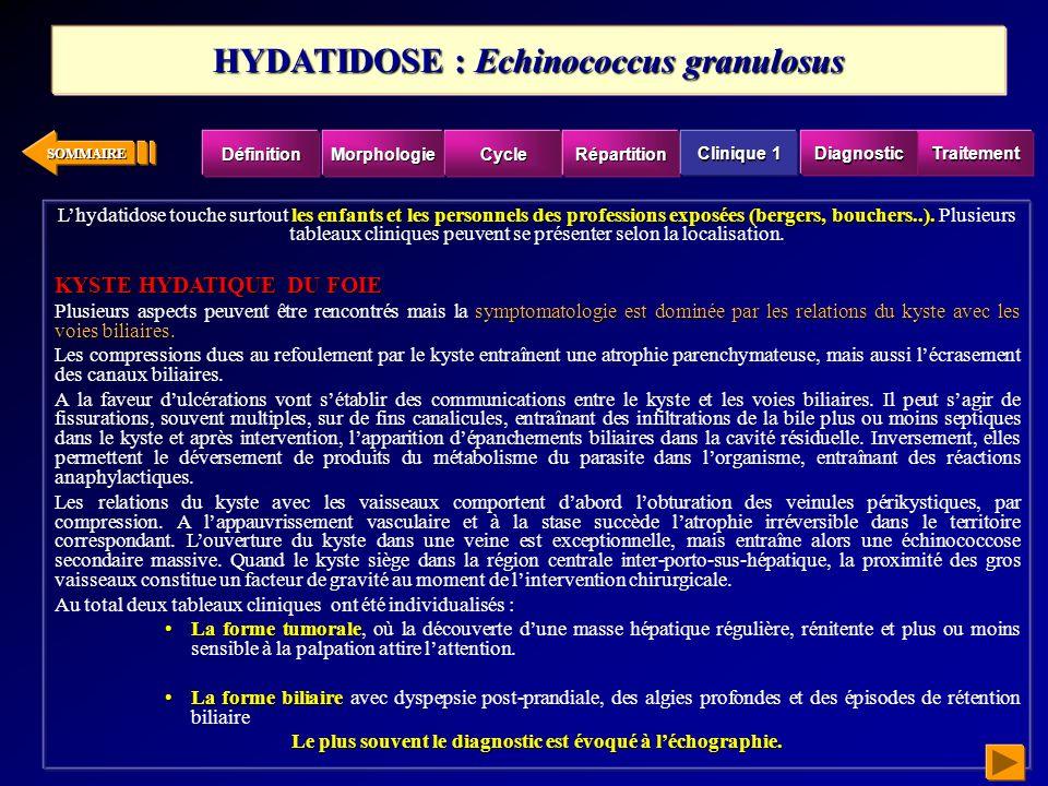 SOMMAIRE LES SYMPTÔMES RAPPELLENT CEUX DE LA DISTOMATOSE À FASCIOLA HEPATICA LES SYMPTÔMES RAPPELLENT CEUX DE LA DISTOMATOSE À FASCIOLA HEPATICA.