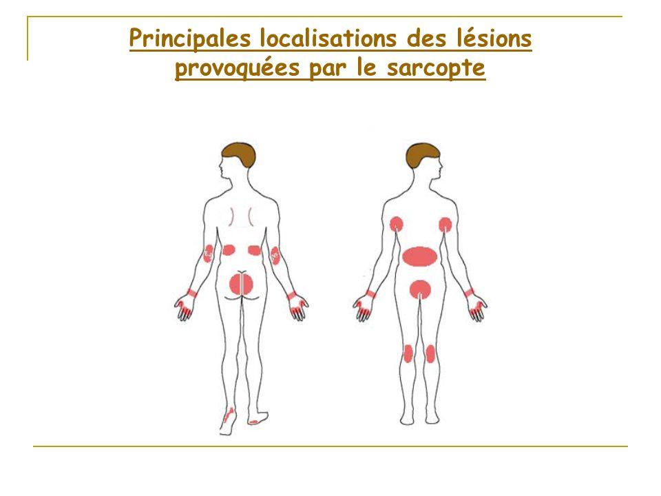 Principales localisations des lésions provoquées par le sarcopte