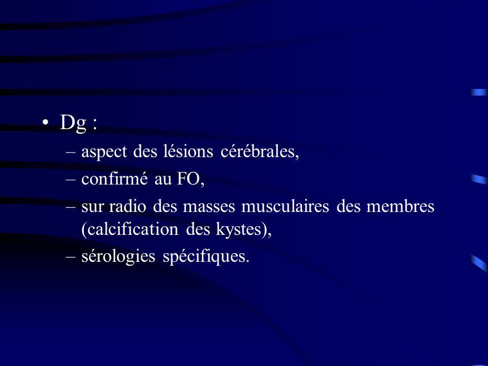 Dg : –aspect des lésions cérébrales, –confirmé au FO, –sur radio des masses musculaires des membres (calcification des kystes), –sérologies spécifique