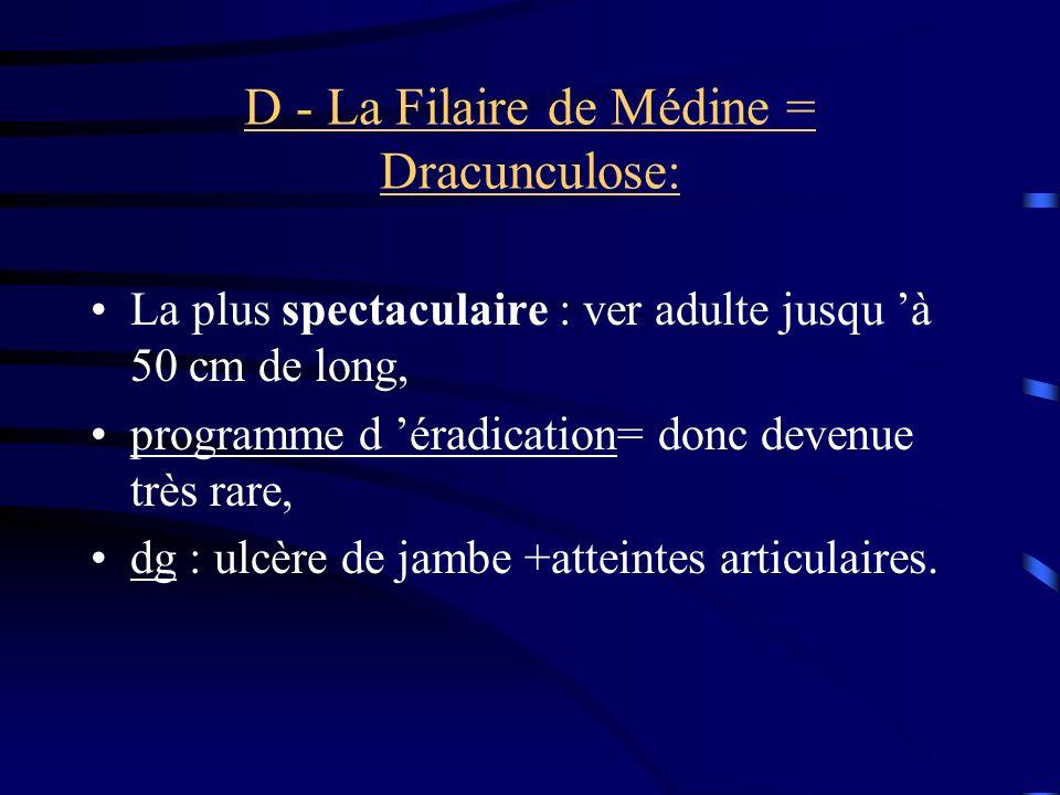 D - La Filaire de Médine = Dracunculose: La plus spectaculaire : ver adulte jusqu à 50 cm de long, programme d éradication= donc devenue très rare, dg